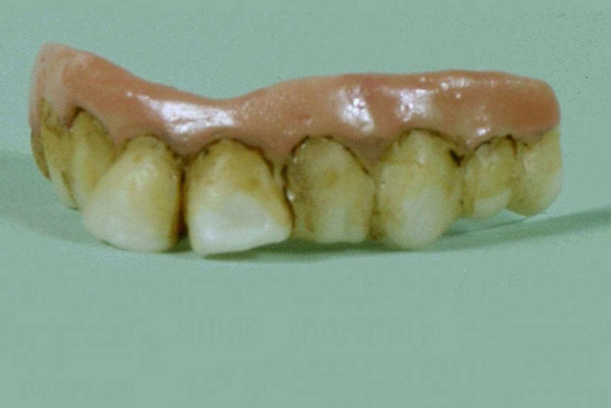 dr bukk funny teeth