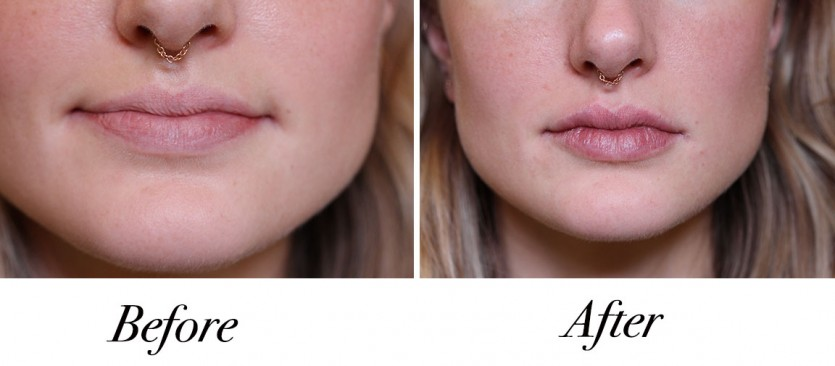 what to know before getting lip fillers