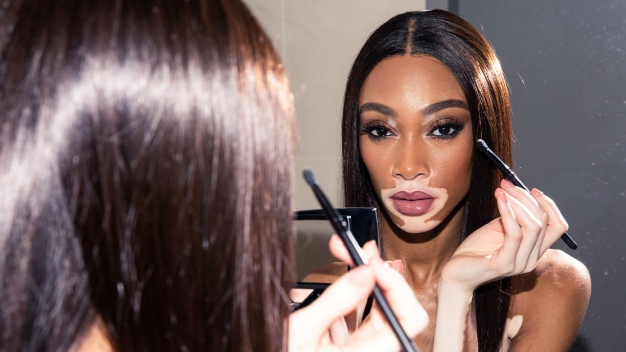 Winnie Harlow Revealed the Best Moisturizing Trick for Baby-Soft Skin