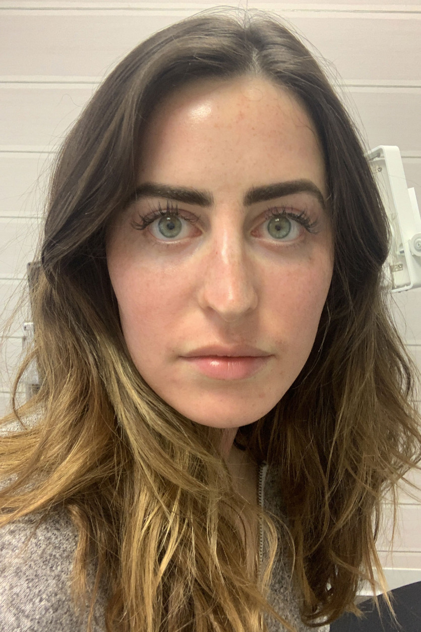 clinical microneedling treatment review
