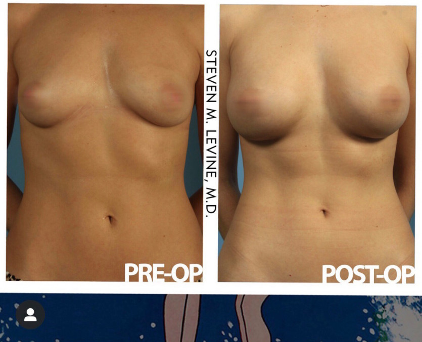 Everything You Need To Know About Breast Augmentation Surgery