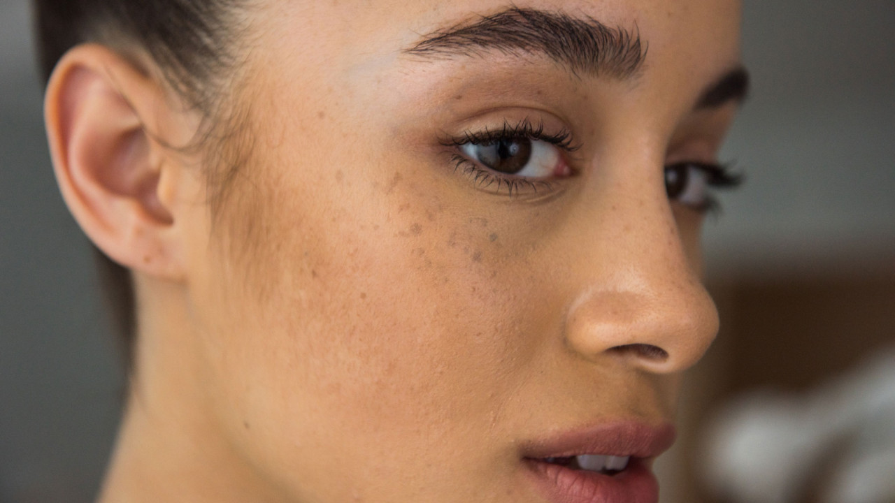 The Best Over-the-Counter Ingredients to Fight Dark Spots, According to Your Dermatologist